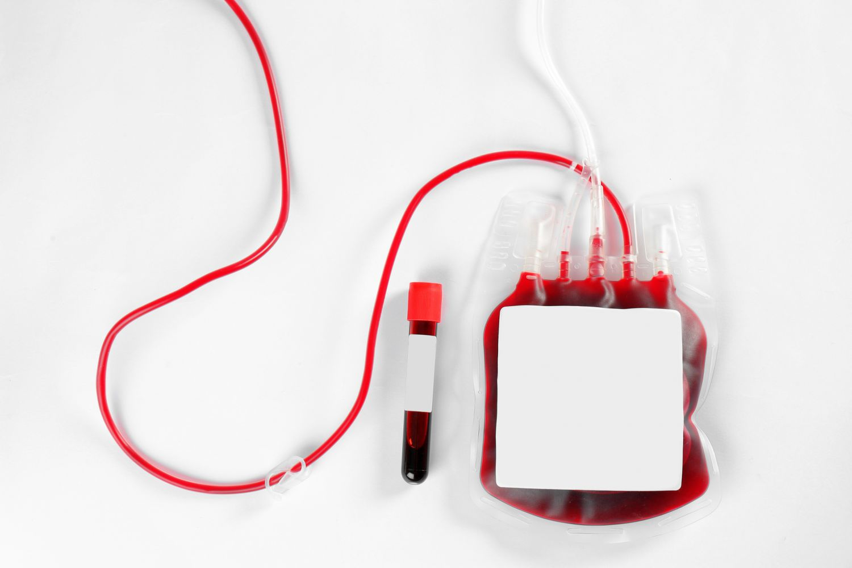 Blutspende im Transfusionsbeutel; Thema: Seltene Blutkrankheiten
